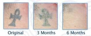 Eliminar tatuaje crema