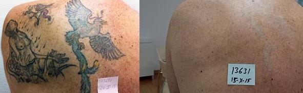 Eliminación de tatuajes con el Láser Q-Switched: ¡Mirad los resultados!
