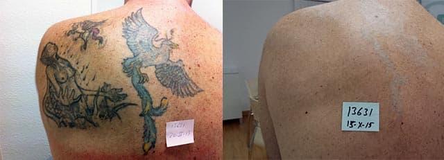 Eliminación De Tatuajes Con El Láser Q Switched Mirad Los