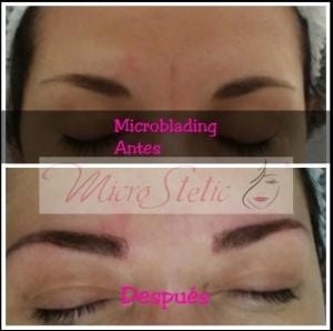 Microblading cejas antes y después 2