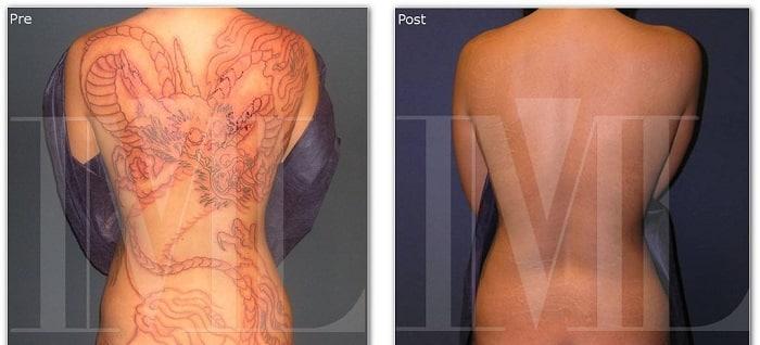 Tratamientos más eficaces para eliminar tatuajes